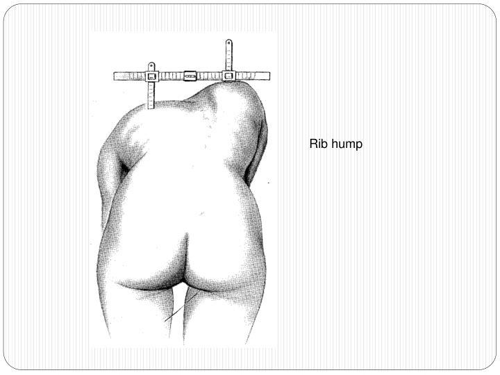 Rib hump