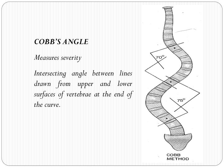 COBB'S ANGLE