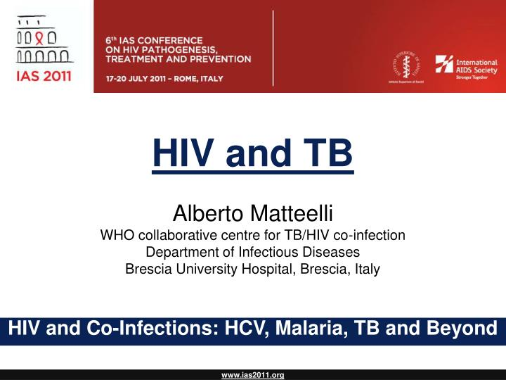 hiv and tb