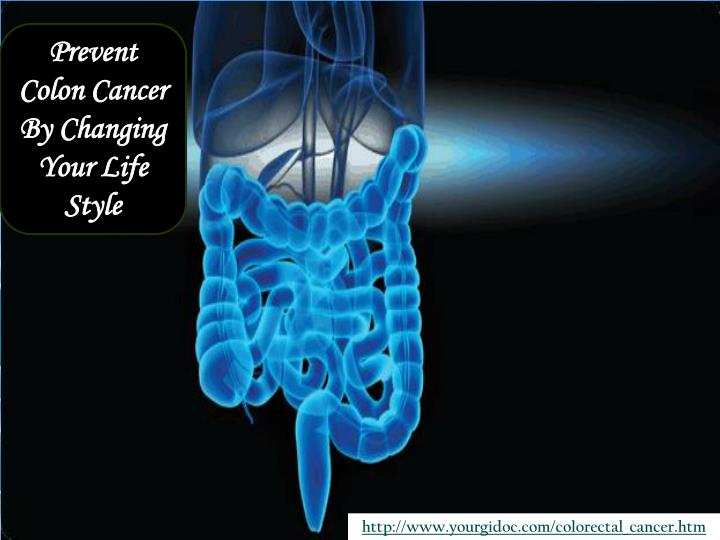 Prevent Colon Cancer By Changing Your Life Style