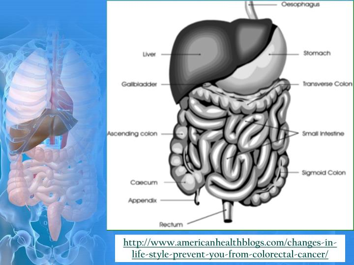 http://www.americanhealthblogs.com/changes-in-life-style-prevent-you-from-colorectal-cancer