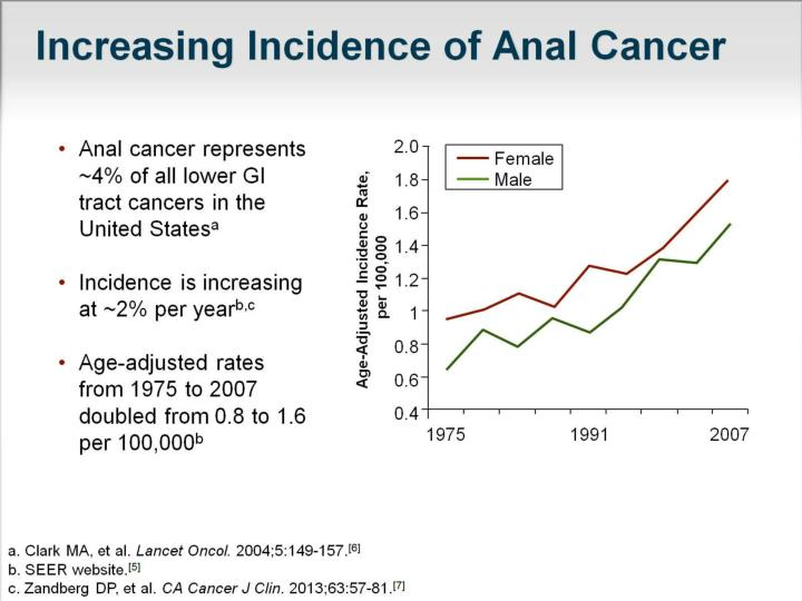 Increasing Incidence of Anal Cancer