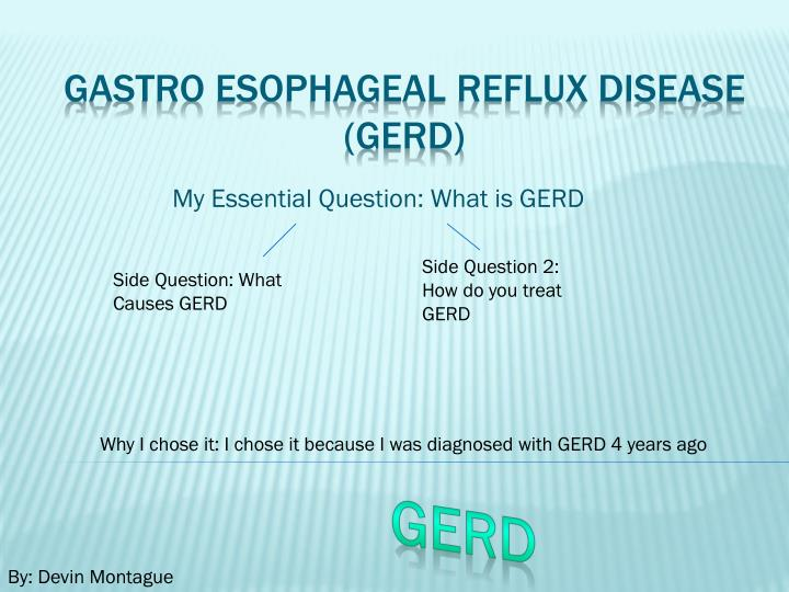Side Question 2: How do you treat GERD