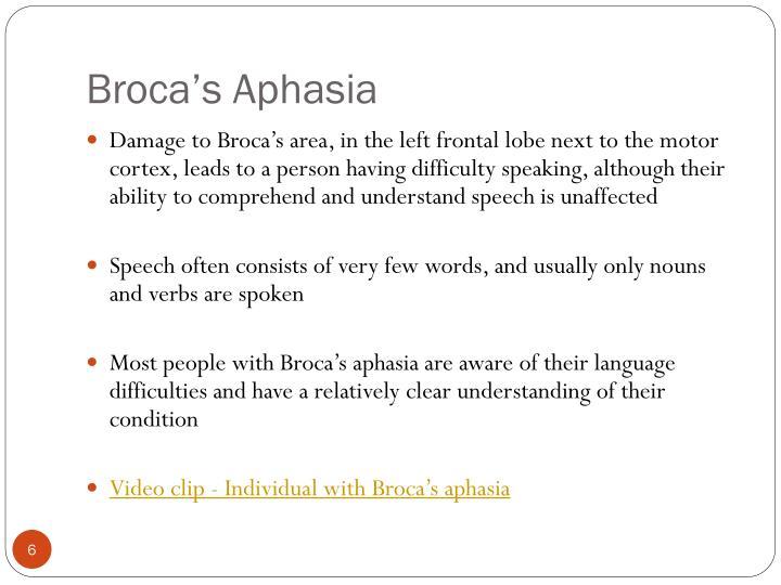 Broca's