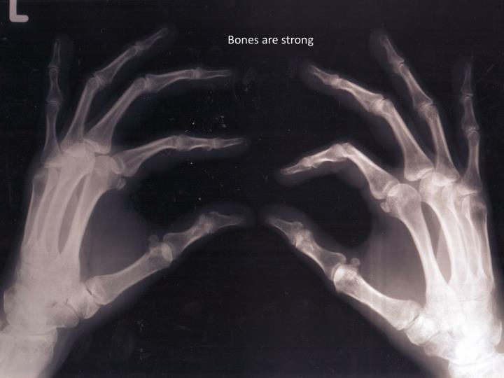 Bones are strong