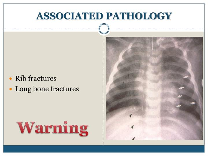 ASSOCIATED PATHOLOGY