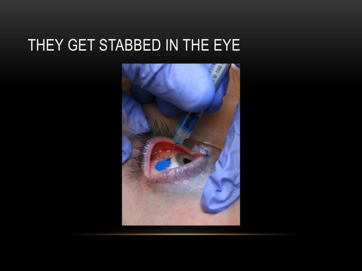 THEY GET STABBED IN THE EYE