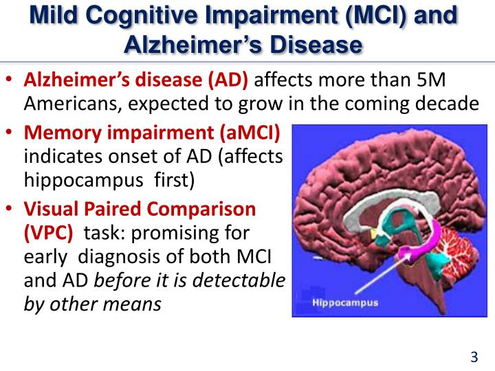 Mild cognitive impairment mci and alzheimer s disease