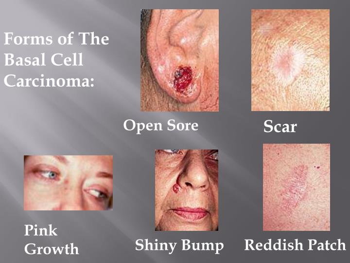 Forms of The Basal Cell Carcinoma: