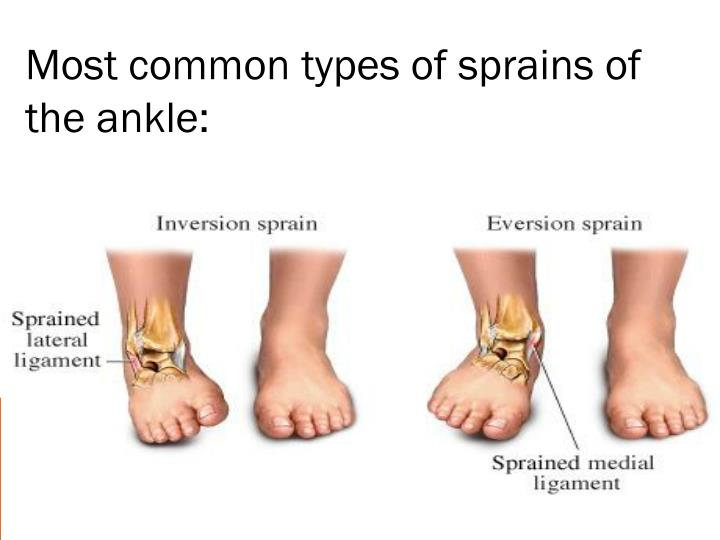 Most common types of sprains of the ankle: