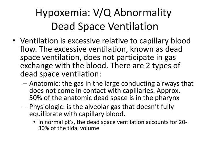 Hypoxemia: V/Q Abnormality