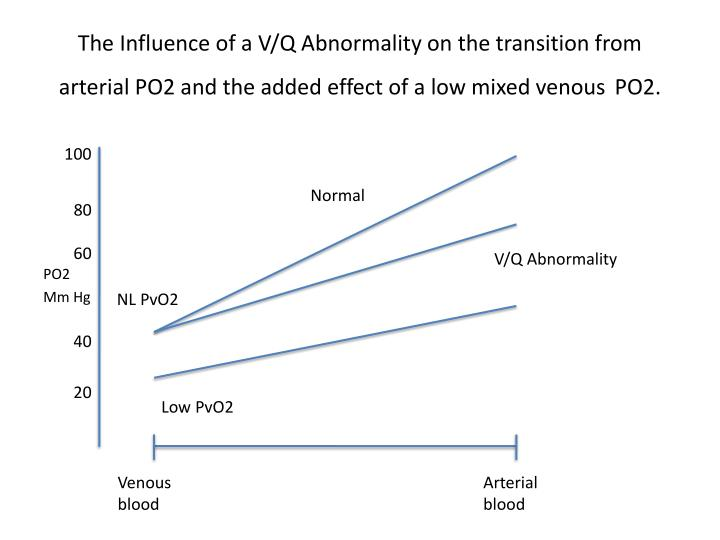 The Influence of a V/Q Abnormality on the transition from arterial PO2 and the added effect of a low mixed venous