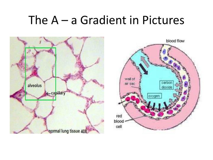 The A – a Gradient in Pictures