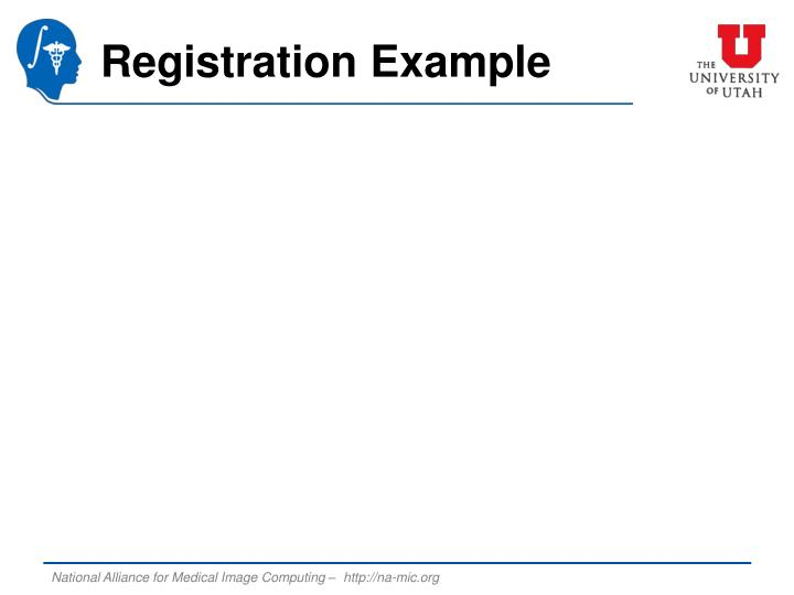 Registration Example