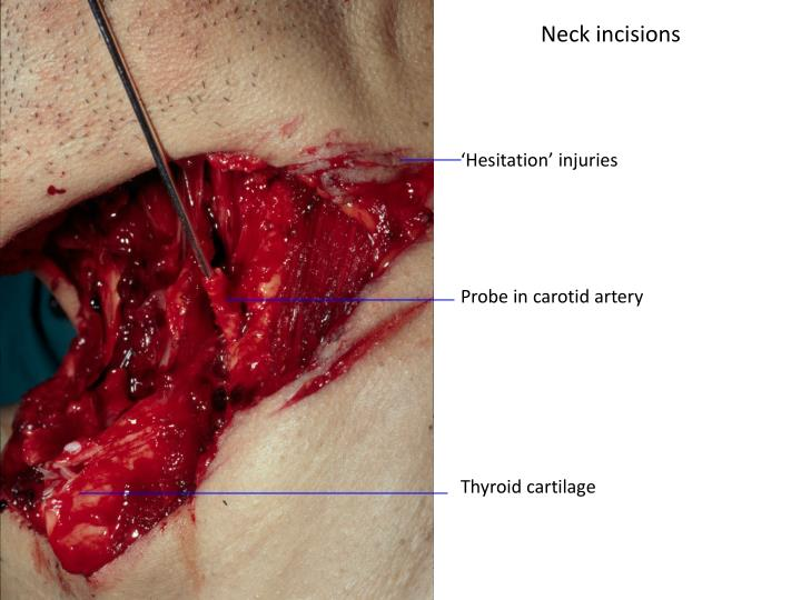 Neck incisions