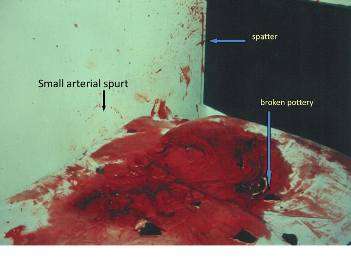 Small arterial spurt