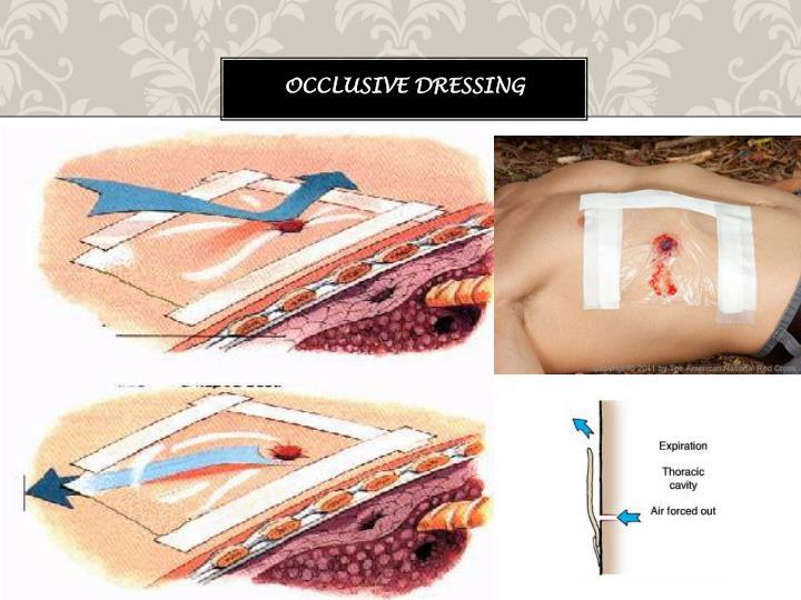 Occlusive Dressing