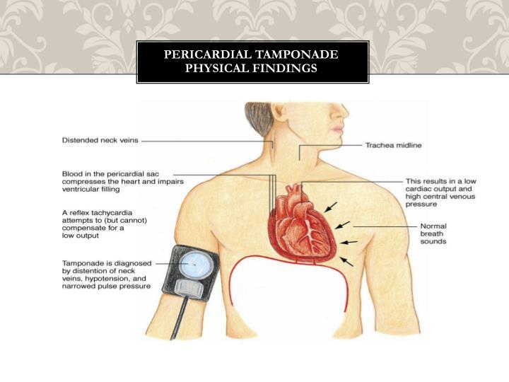 Pericardial