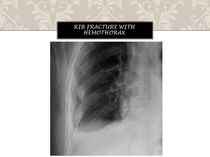 Rib fracture with