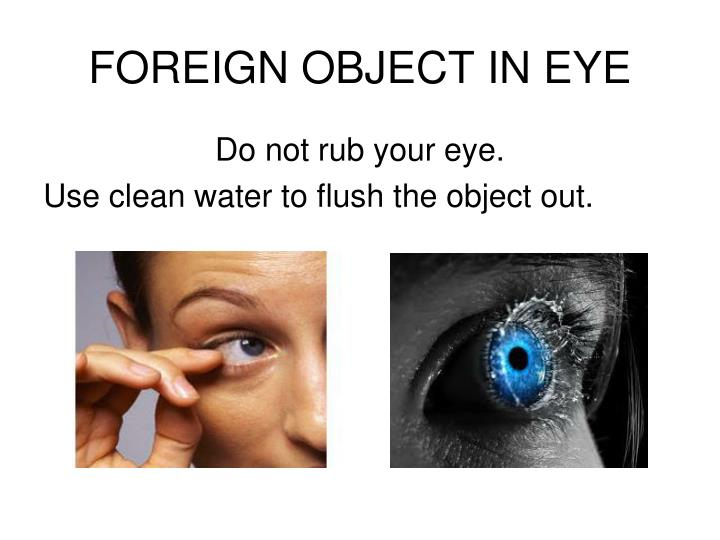 FOREIGN OBJECT IN EYE