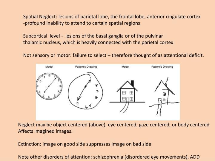 Spatial Neglect: lesions of parietal lobe, the