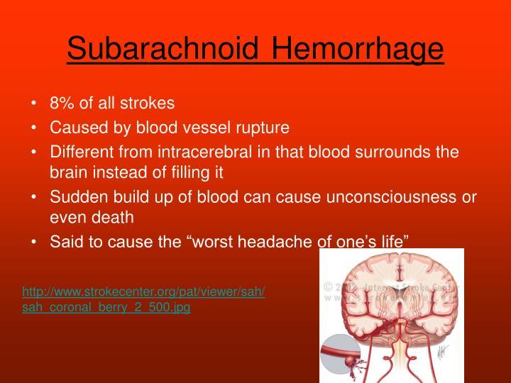 SubarachnoidHemorrhage