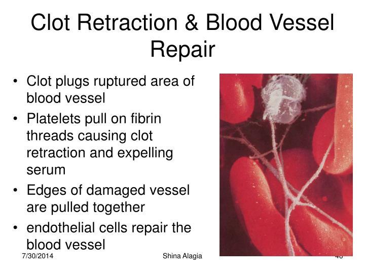 Clot Retraction & Blood Vessel Repair