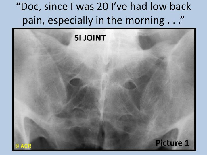 """""""Doc, since I was 20 I've had low back pain, especially in the morning . . ."""""""