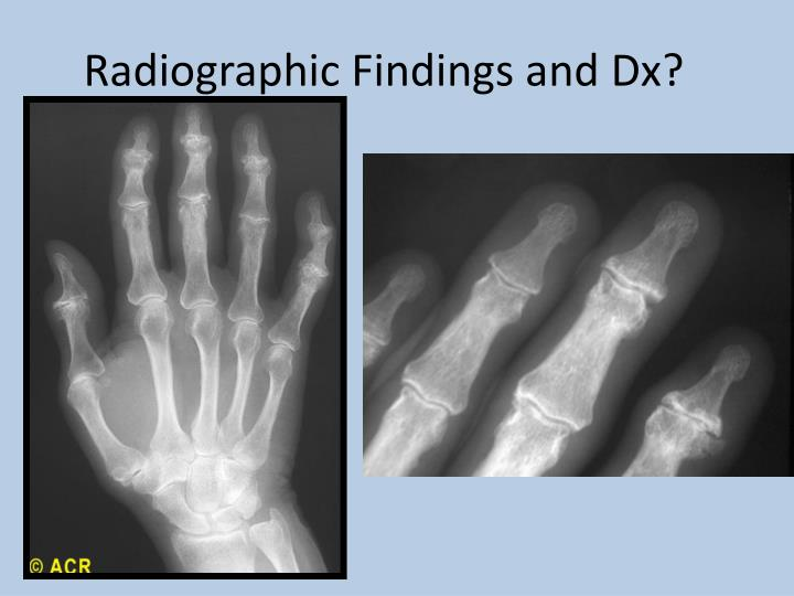 Radiographic Findings and