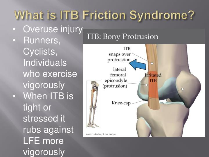 What is ITB Friction Syndrome?