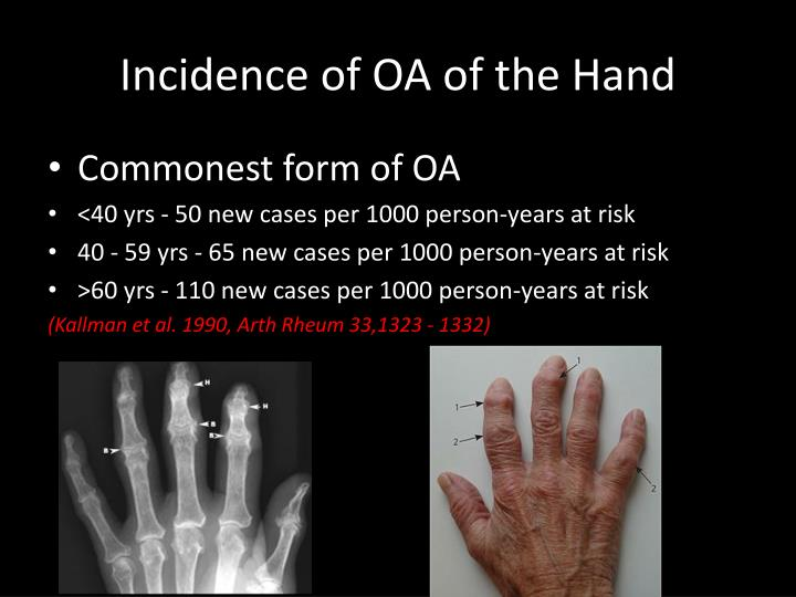 Incidence of OA of the Hand