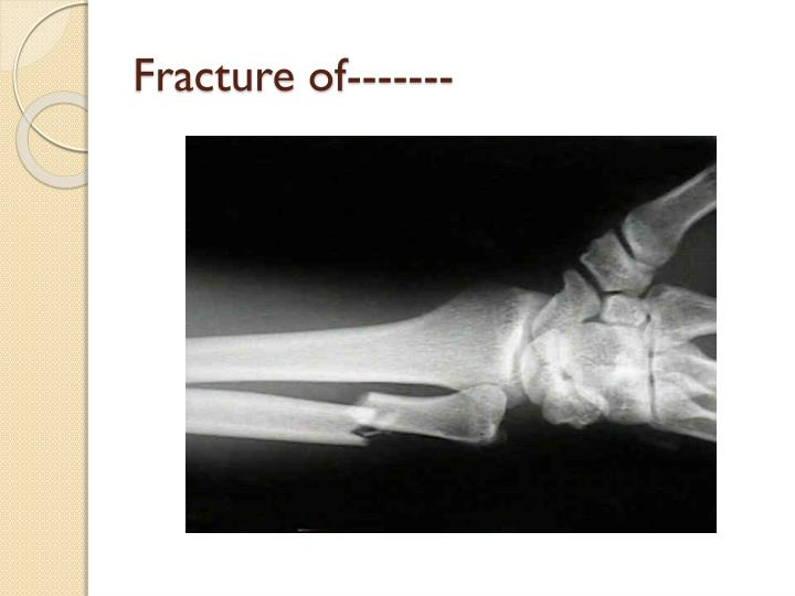 Fracture of-------