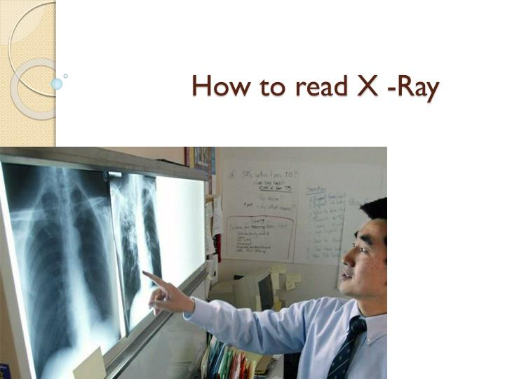 How to read X -Ray