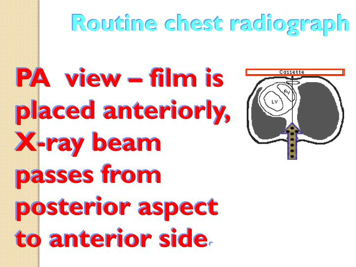 Routine chest radiograph