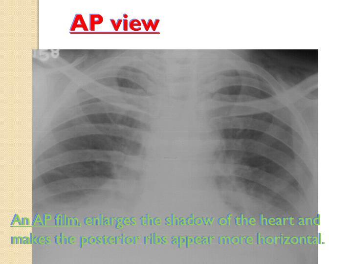AP view