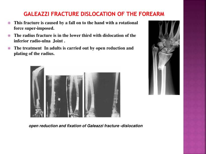 GALEAZZI FRACTURE DISLOCATION OF THE FOREARM
