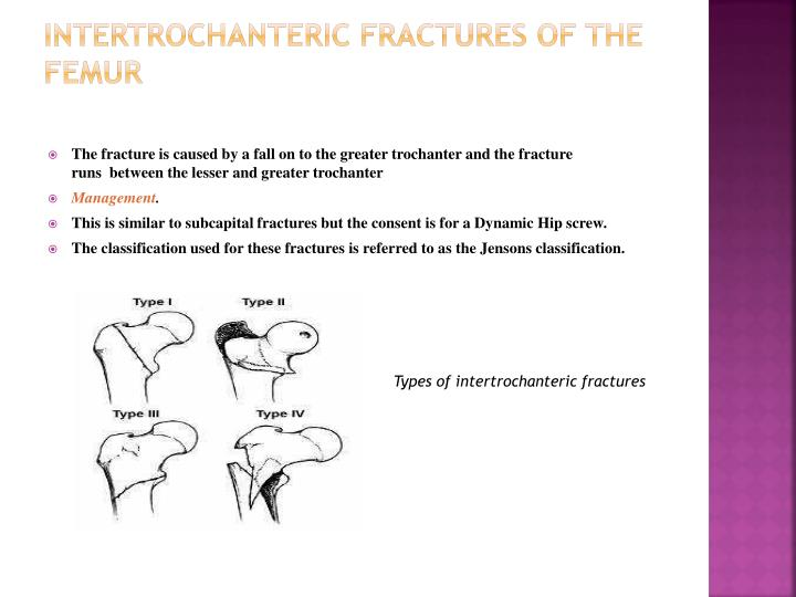 INTERTROCHANTERIC FRACTURES OF THE FEMUR