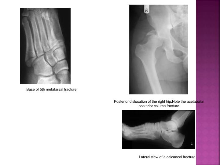 Base of 5th metatarsal fracture