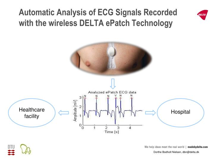 automatic analysis of ecg signals recorded with the wireless delta epatch technology