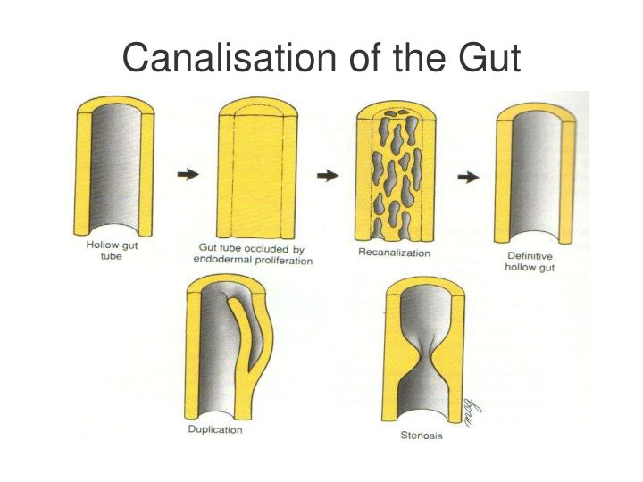 Canalisation of the Gut