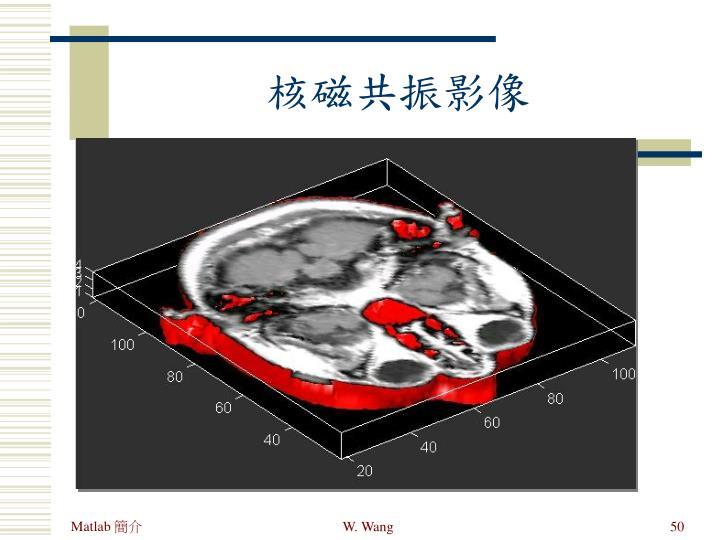 核磁共振影像
