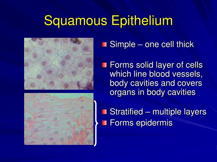 Squamous Epithelium