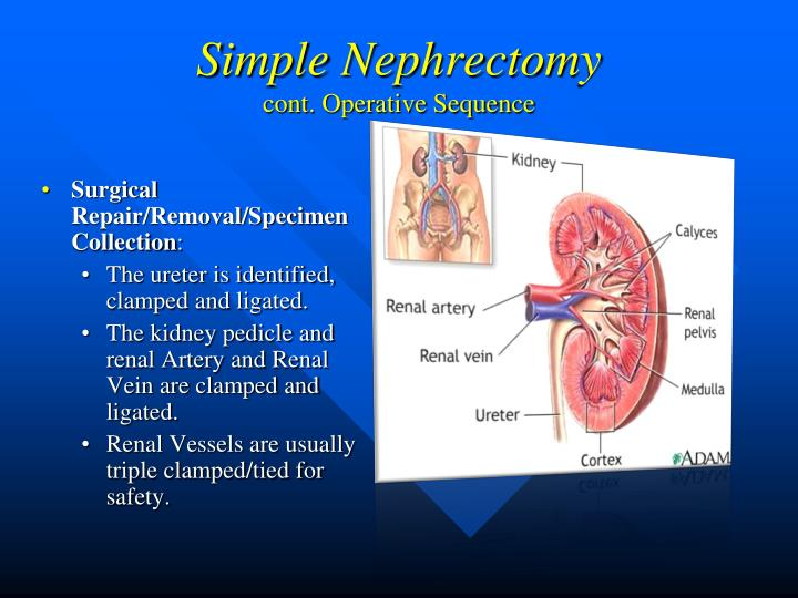 Simple Nephrectomy