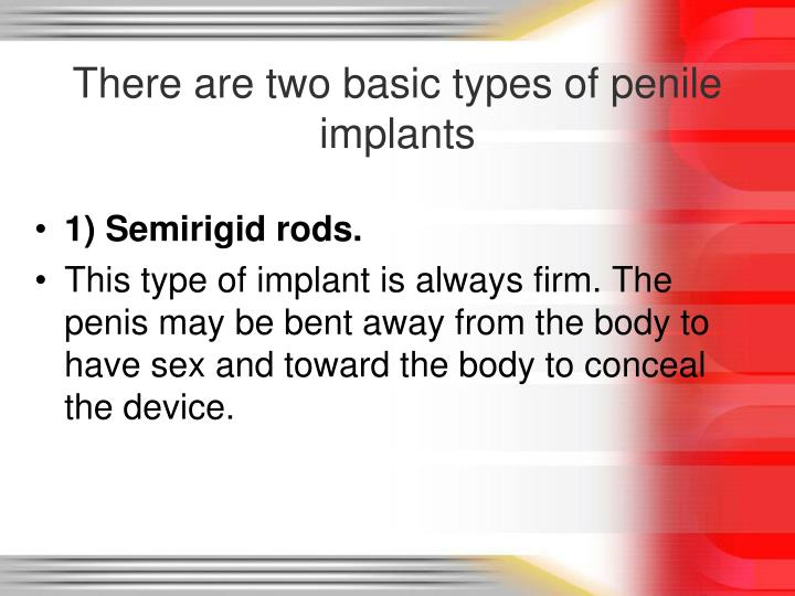 There are two basic types of penile implants