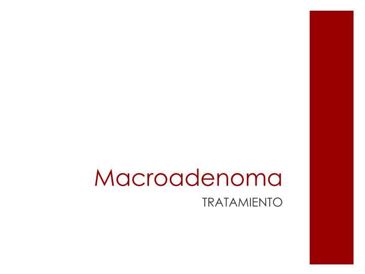 Macroadenoma