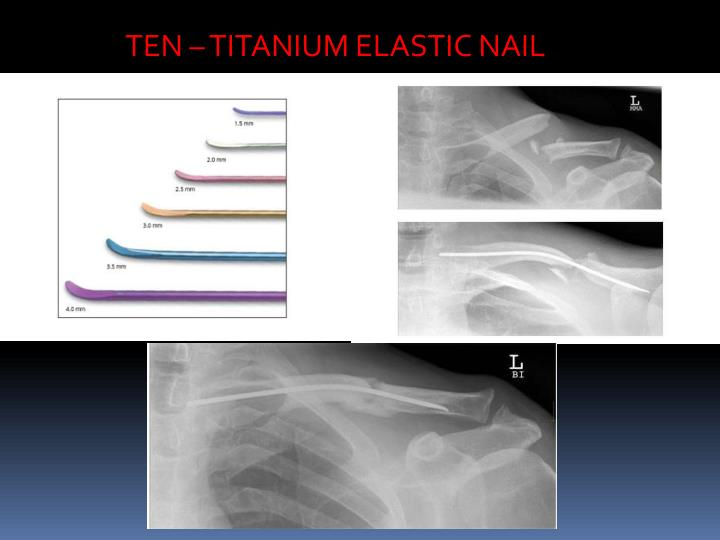 TEN – TITANIUM ELASTIC NAIL