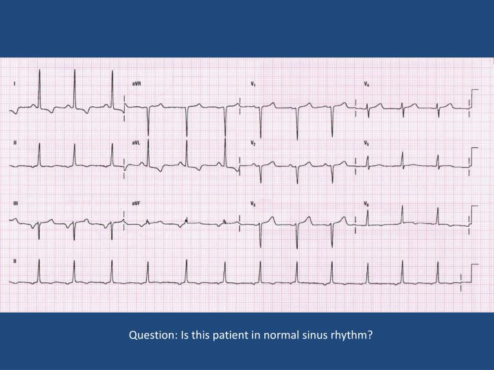 Question: Is this patient in normal sinus rhythm?