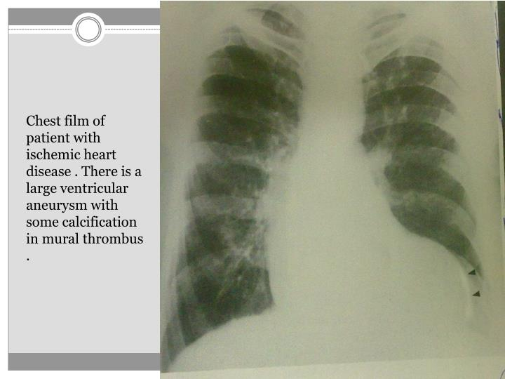 Chest film of patient with ischemic heart disease . There is a large ventricular aneurysm with some ...