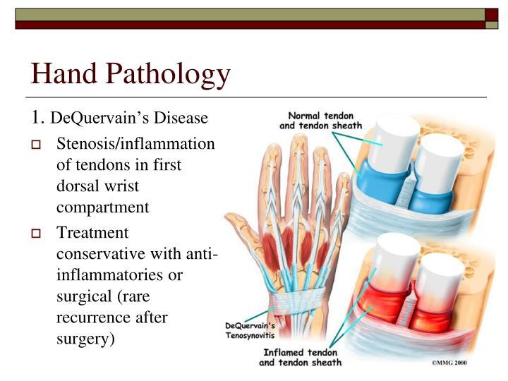 Hand Pathology
