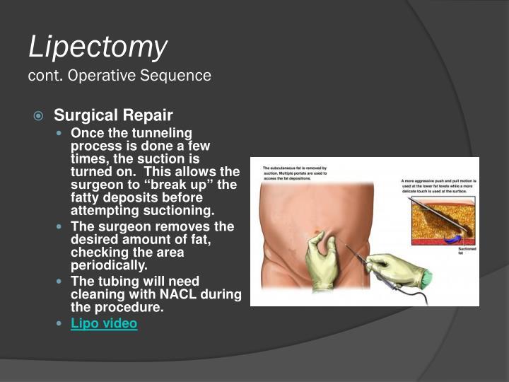 Lipectomy